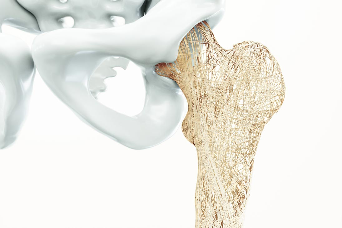 7 Yoga Poses to Help Alleviate the Symptoms of Osteoporosis - Yoga Pose